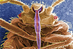 magnified bed bug