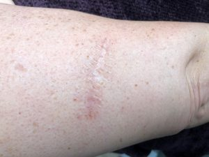 Robin Soler's melanoma scar